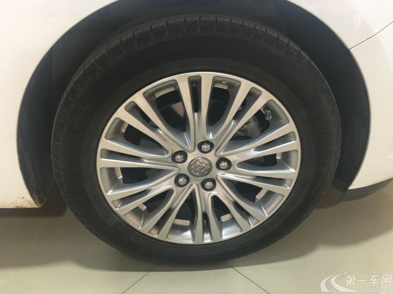 别克英朗GT 2017款 1.5L 手动 15N精英型 (国Ⅴ)